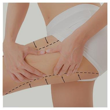 procedimentos corporias coxas dra patricia maciel